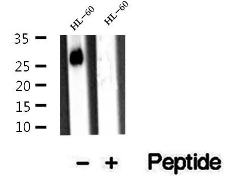 Western Blotting (WB) image for anti-rho GDP Dissociation Inhibitor (GDI) beta (ARHGDIB) antibody (ABIN6260031)