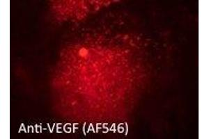 Image no. 2 for anti-Vascular Endothelial Growth Factor A (VEGFA) (Isoform 6) antibody (ABIN6254198)