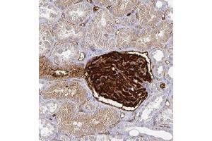 Immunohistochemistry (Paraffin-embedded Sections) (IHC (p)) image for anti-Podocalyxin-Like (PODXL) antibody (ABIN4346616)