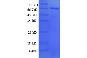 Image no. 1 for Paired Box Gene 2a (PAX2A) (AA 1-363), (partial) protein (GST tag) (ABIN5712780)