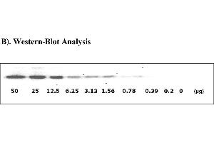 Image no. 5 for Signal Transducer and Activator of Transcription 1, 91kDa (STAT1) ELISA Kit (ABIN625231)