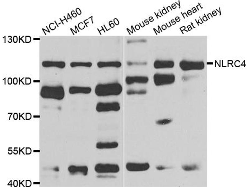 Western Blotting (WB) image for anti-NLR Family, CARD Domain Containing 4 (NLRC4) antibody (ABIN3047769)