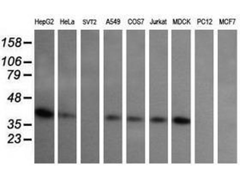 image for anti-MAP2K3 antibody (Mitogen-Activated Protein Kinase Kinase 3) (ABIN1499415)