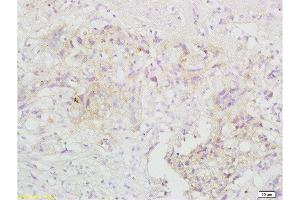 Immunohistochemistry (Paraffin-embedded Sections) (IHC (p)) image for anti-TNF Receptor-Associated Factor 3 (TRAF3) (AA 130-180) antibody (ABIN738921)