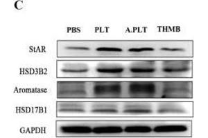 Image no. 5 for anti-Hydroxy-delta-5-Steroid Dehydrogenase, 3 beta- and Steroid delta-Isomerase 2 (HSD3B2) (Center) antibody (ABIN2855488)