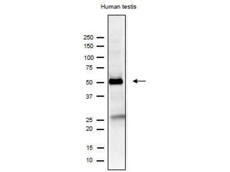 Western Blotting (WB) image for anti-Izumo Sperm-Egg Fusion 1 (IZUMO1) antibody (ABIN2452040)