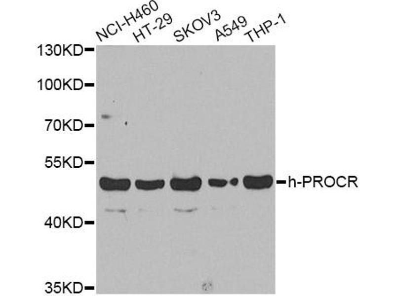 Image no. 1 for anti-Protein C Receptor, Endothelial (PROCR) antibody (ABIN6568101)