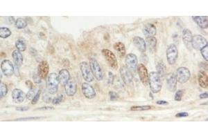 Immunohistochemistry (Paraffin-embedded Sections) (IHC (p)) image for anti-Mitogen-Activated Protein Kinase Associated Protein 1 (MAPKAP1) (C-Term) antibody (ABIN258134)