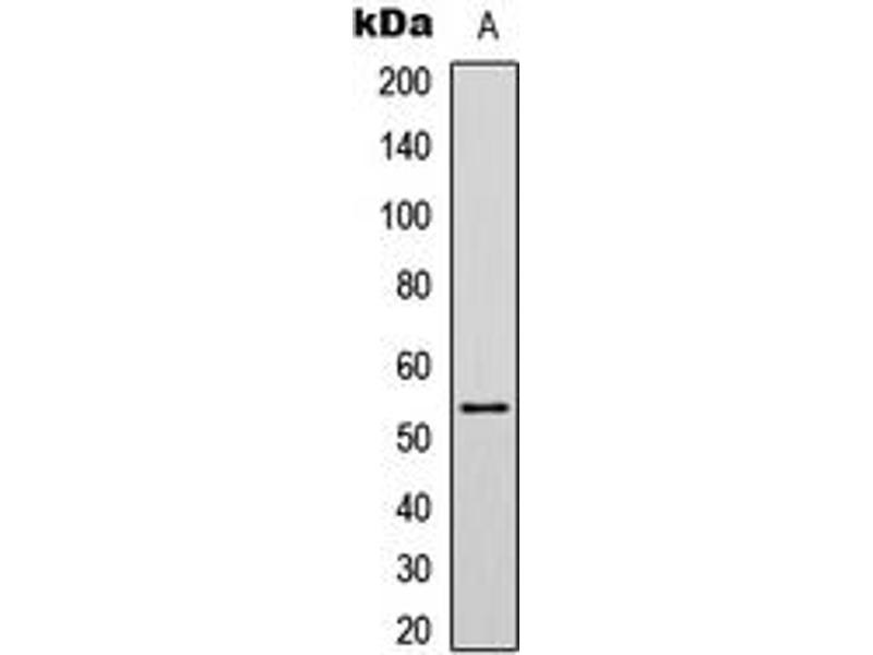 Western Blotting (WB) image for anti-p53 antibody (Tumor Protein P53) (C-Term) (ABIN2705089)