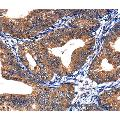 anti-Casein Kinase 2, alpha 1 Polypeptide (CSNK2A1) antibody