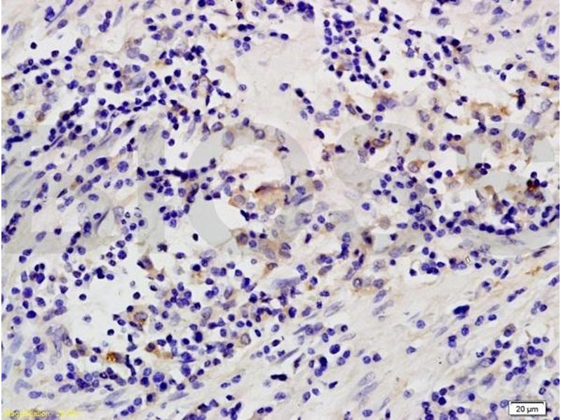 Immunohistochemistry (IHC) image for anti-Mitogen-Activated Protein Kinase Kinase Kinase 8 (MAP3K8) (AA 140-190) antibody (ABIN701275)