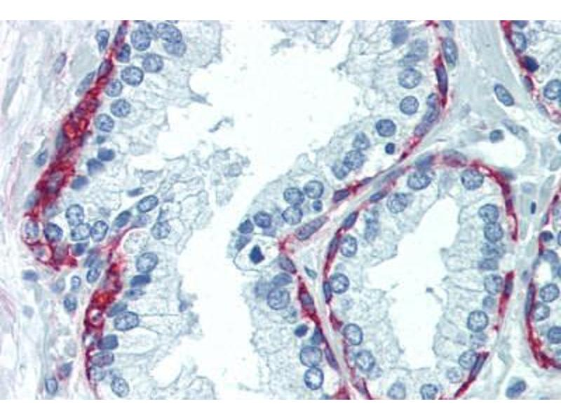 Immunohistochemistry (Paraffin-embedded Sections) (IHC (p)) image for anti-Nerve Growth Factor Receptor (NGFR) (Extracellular Domain) antibody (ABIN462128)
