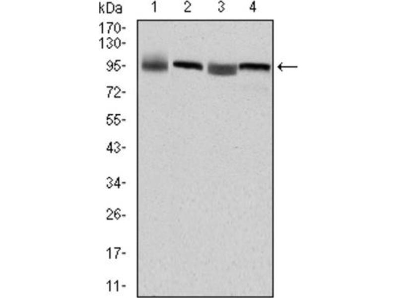 Western Blotting (WB) image for anti-Eukaryotic Translation Elongation Factor 2 (EEF2) antibody (ABIN1846025)