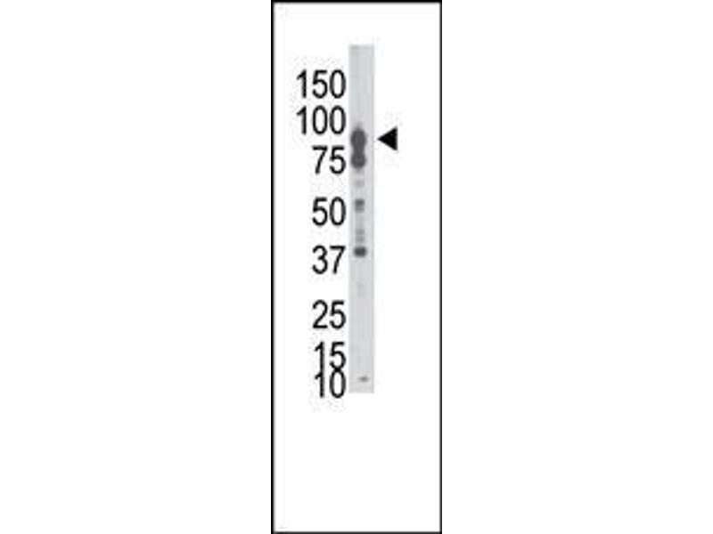 Western Blotting (WB) image for anti-EPH Receptor B6 antibody (EPHB6) (AA 45-74) (ABIN391927)