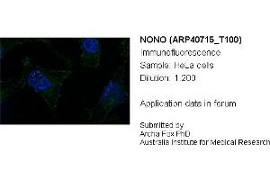 anti-Non-POU Domain Containing, Octamer-Binding (NONO) (N-Term) antibody (2)