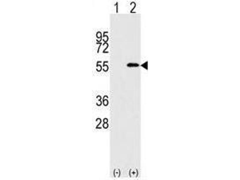 image for anti-Nucleoporin 50kDa (NUP50) (C-Term) antibody (ABIN357219)