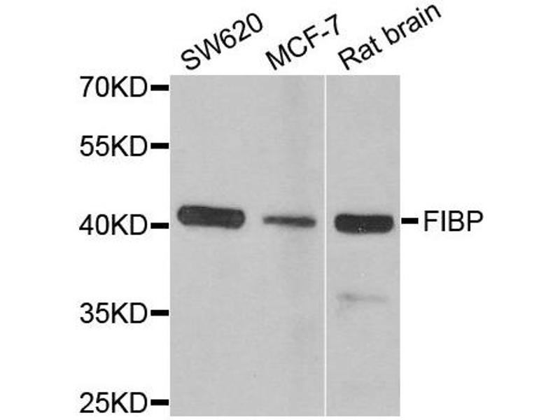 Image no. 1 for anti-Fibroblast Growth Factor (Acidic) Intracellular Binding Protein (FIBP) antibody (ABIN2562604)