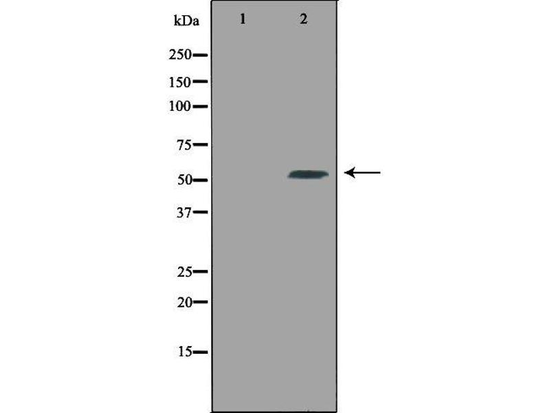 Western Blotting (WB) image for anti-Carboxypeptidase E (CPE) antibody (ABIN6257071)