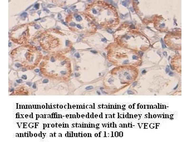 Immunohistochemistry (IHC) image for anti-VEGF antibody (Vascular Endothelial Growth Factor A) (ABIN802829)