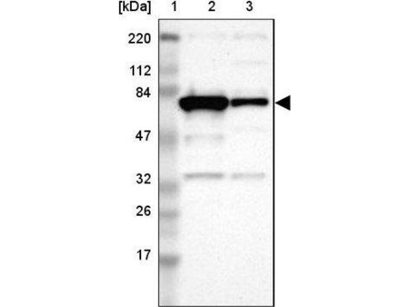 Western Blotting (WB) image for anti-Optineurin (OPTN) antibody (ABIN4341482)
