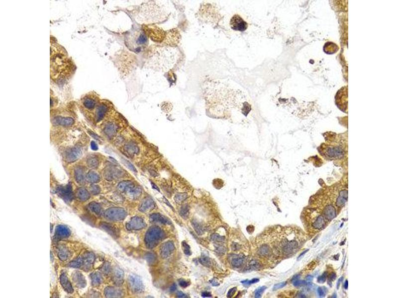 Immunohistochemistry (IHC) image for anti-Glycogen Synthase 1 (Muscle) (GYS1) antibody (ABIN1872925)