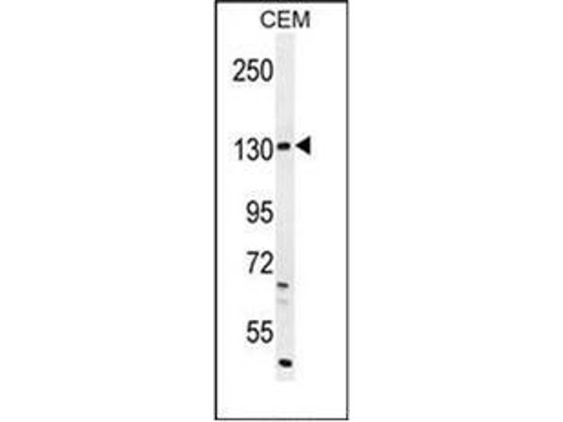 Western Blotting (WB) image for anti-Dual Oxidase 2 (DUOX2) (AA 520-550), (Middle Region) antibody (ABIN951993)