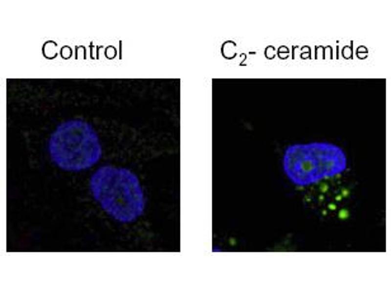 Immunofluorescence (IF) image for anti-Microtubule-Associated Protein 1 Light Chain 3 beta (MAP1LC3B) (N-Term) antibody (ABIN153145)