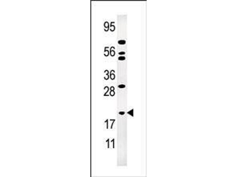Western Blotting (WB) image for anti-Adenylate Kinase 1 antibody (AK1) (AA 30-59) (ABIN392794)