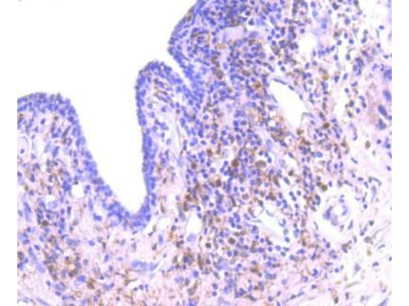 Immunohistochemistry (Paraffin-embedded Sections) (IHC (p)) image for anti-Protein Kinase C, delta (PKCd) (C-Term) antibody (ABIN5947537)