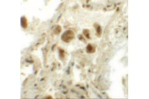 Immunohistochemistry (IHC) image for anti-Ras Association (RalGDS/AF-6) Domain Family (N-Terminal) Member 10 (RASSF10) (N-Term) antibody (ABIN4349448)