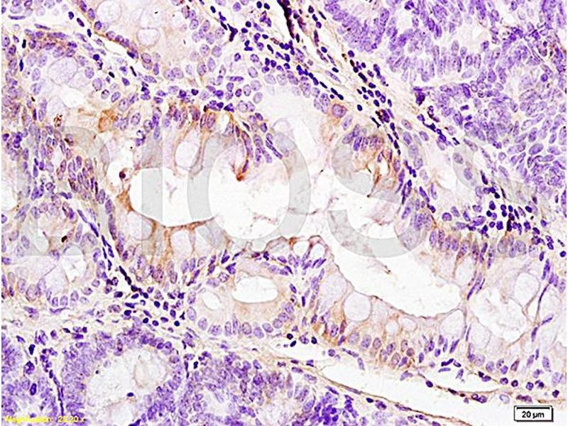 Immunohistochemistry (IHC) image for anti-Platelet-Derived Growth Factor Receptor, alpha Polypeptide (PDGFRA) (AA 1020-1070) antibody (ABIN726620)