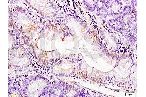 Immunohistochemistry (IHC) image for anti-PDGFRA antibody (Platelet-Derived Growth Factor Receptor, alpha Polypeptide) (AA 1020-1070) (ABIN726620)