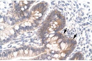 Image no. 1 for anti-FOS-Like Antigen 2 (FOSL2) (Middle Region) antibody (ABIN2777246)