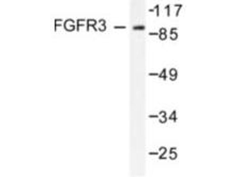 image for anti-FGFR3 antibody (Fibroblast Growth Factor Receptor 3) (ABIN265418)