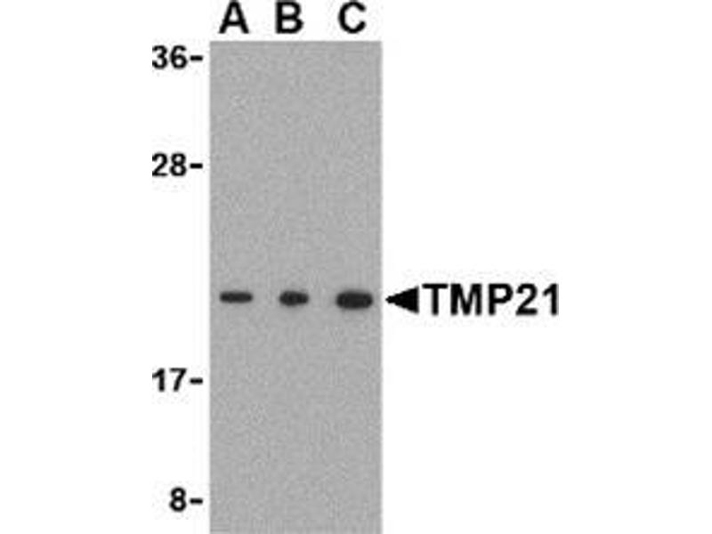 Western Blotting (WB) image for anti-TMED10 antibody (Transmembrane Emp24-Like Trafficking Protein 10 (Yeast)) (C-Term) (ABIN500990)