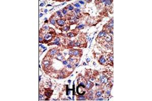 Immunohistochemistry (IHC) image for anti-SQSTM1 antibody (Sequestosome 1) (AA 317-346) (ABIN388979)