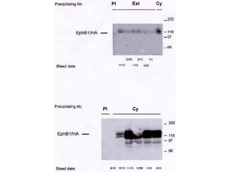 image for anti-EPH Receptor B1 (EPHB1) antibody (ABIN264961)