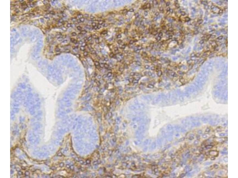Immunohistochemistry (Paraffin-embedded Sections) (IHC (p)) image for anti-Nerve Growth Factor Receptor (TNFRSF16) Associated Protein 1 (NGFRAP1) (AA 350-450) antibody (ABIN5945297)