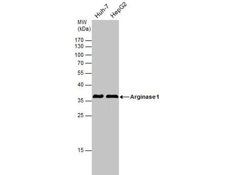 Western Blotting (WB) image for anti-Arginase, Liver (ARG1) (full length) antibody (ABIN2856661)