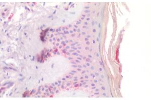 Image no. 1 for anti-Mast/stem Cell Growth Factor Receptor (KIT) (Internal Region) antibody (ABIN6391417)