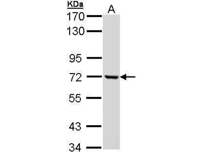Western Blotting (WB) image for anti-Complement Component 1, R Subcomponent (C1R) (Center) antibody (ABIN2855811)