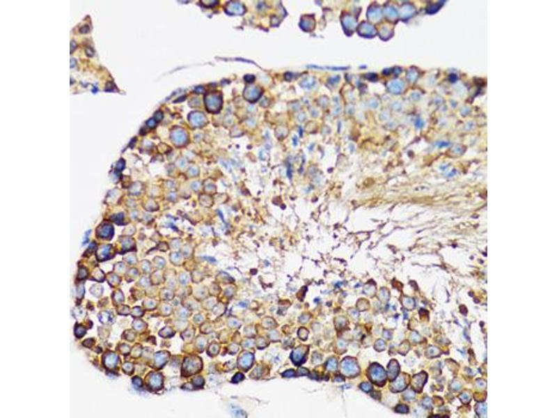Immunohistochemistry (Paraffin-embedded Sections) (IHC (p)) image for anti-Interleukin-1 Receptor-Associated Kinase 4 (IRAK4) antibody (ABIN2968760)