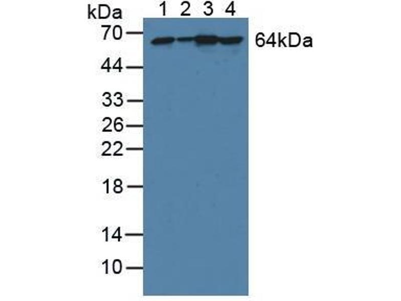 Western Blotting (WB) image for anti-Phosphoglucomutase 1 (PGM1) (AA 1-235) antibody (ABIN5014092)