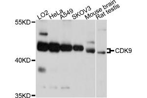 Image no. 1 for anti-Cyclin-Dependent Kinase 9 (CDK9) antibody (ABIN6566686)
