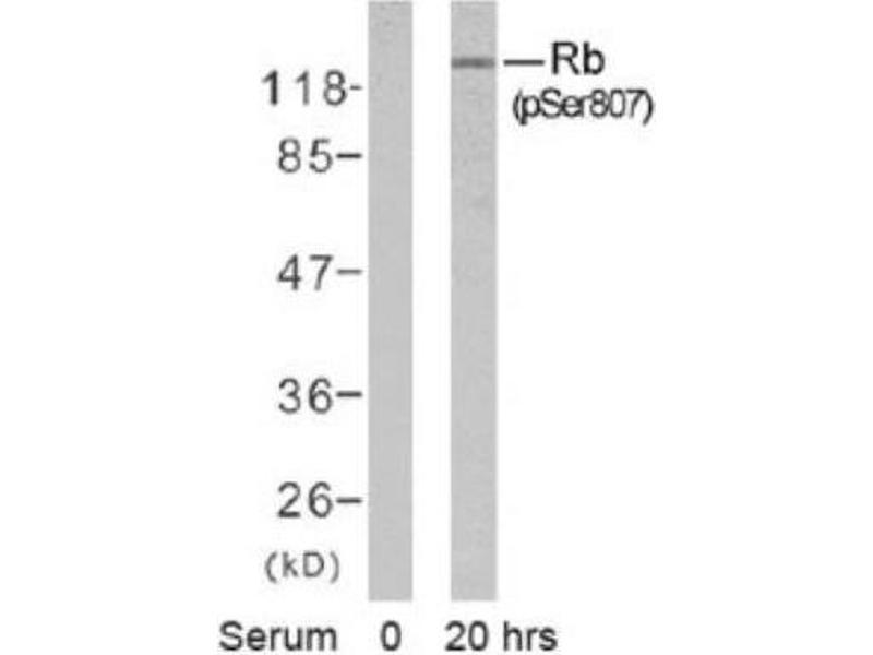 Western Blotting (WB) image for anti-Retinoblastoma 1 (RB1) (pSer807) antibody (ABIN4349474)