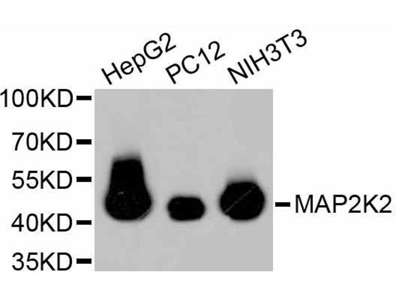 Western Blotting (WB) image for anti-Mitogen-Activated Protein Kinase Kinase 2 (MAP2K2) antibody (ABIN5997042)