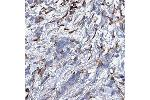 Immunohistochemistry (IHC) image for anti-Microtubule-Associated Protein 1A (MAP1A) antibody (ABIN4332590)