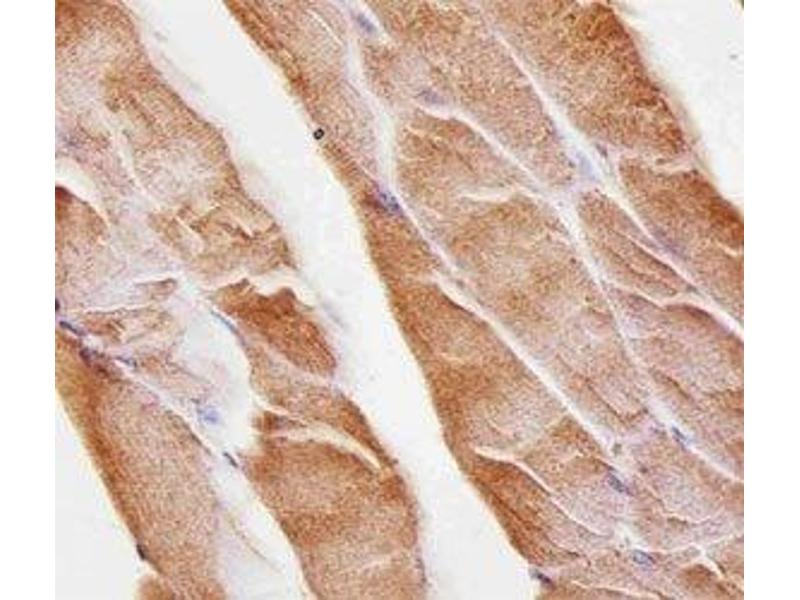 Immunohistochemistry (IHC) image for anti-Muscle, Skeletal, Receptor Tyrosine Kinase (MUSK) antibody (ABIN3031880)
