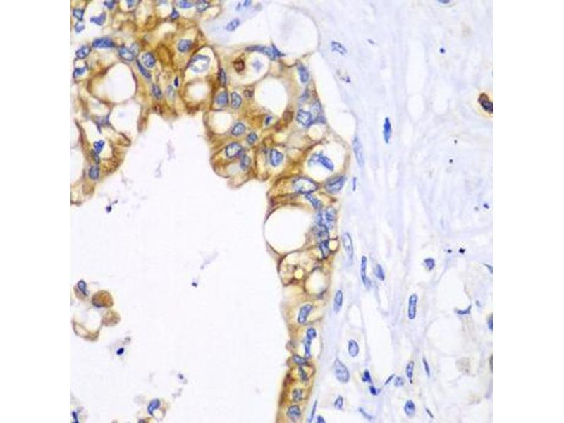 Image no. 2 for anti-B-Cell CLL/lymphoma 2 (BCL2) antibody (ABIN6566500)