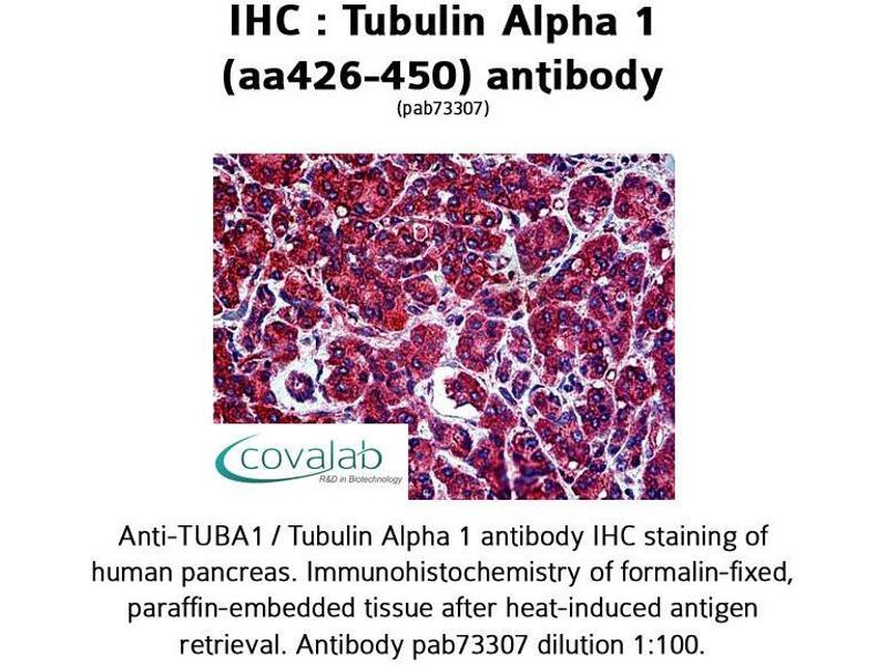 image for anti-TUBA1A antibody (Tubulin, alpha 1a) (AA 426-450) (ABIN1740442)